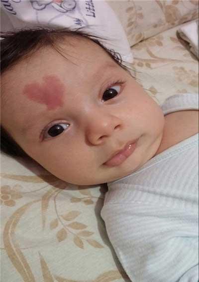 نوزادی با علامت قلب روی پیشانی (عکس)